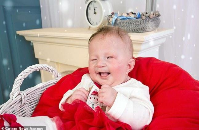 في حالة طبية نادرة.. ولادة طفلة بريطانية بعيون قطة