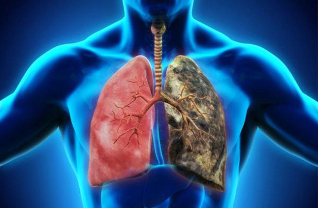 وصفة سحرية تخلص رئتيك من سموم التدخين
