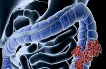 مواد غذائية تمنع خطر الإصابة بسرطان قاتل