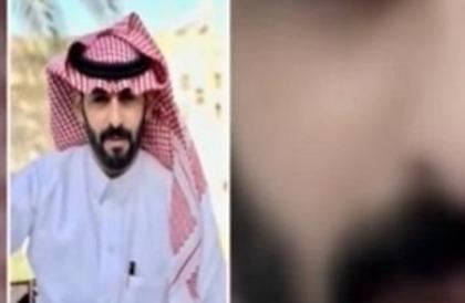 """بالفيديو: """"الحربي"""" يروي تفاصيل إنقاذه لمعلمة بريدة من اعتداء شخصين"""