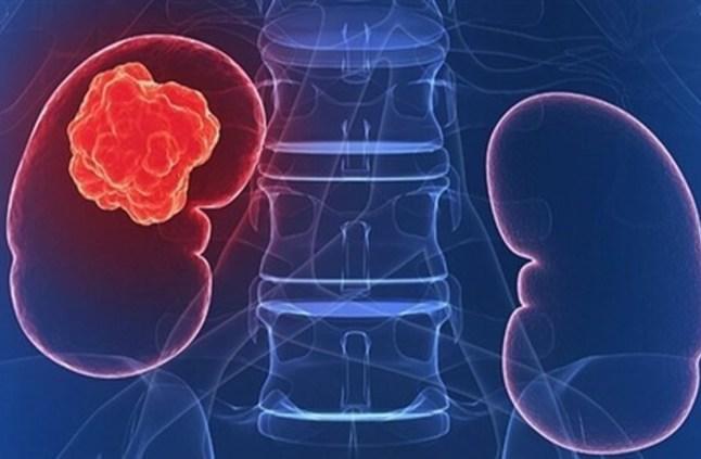 أهم عوامل الخطر المسببة لسرطان الكلى