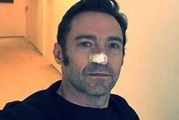 وقد أصيب جاكمان بسرطان الجلد 6 مرات ولكنه تعافى منه ونصح جاكمان جمهوره بضرورة إجراء الفحوصات الدورية حتى يقوا أنفسهم من الإصابة بالأمراض الخطيرة
