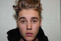 اعترف بيبر للشرطة بأنه تناول الكحول وكذلك دخن الماريجوانا وتم إطلاق سراحه بكفالة 2500 دولار